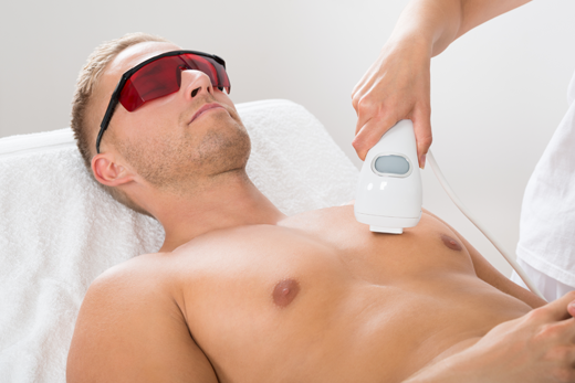 laser-hair-removal-west-sussex